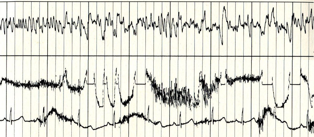 A sampling of Ann Druyan's brain waves, recorded on June 3, 1977.