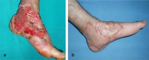 The result of a skin graft. (Source)