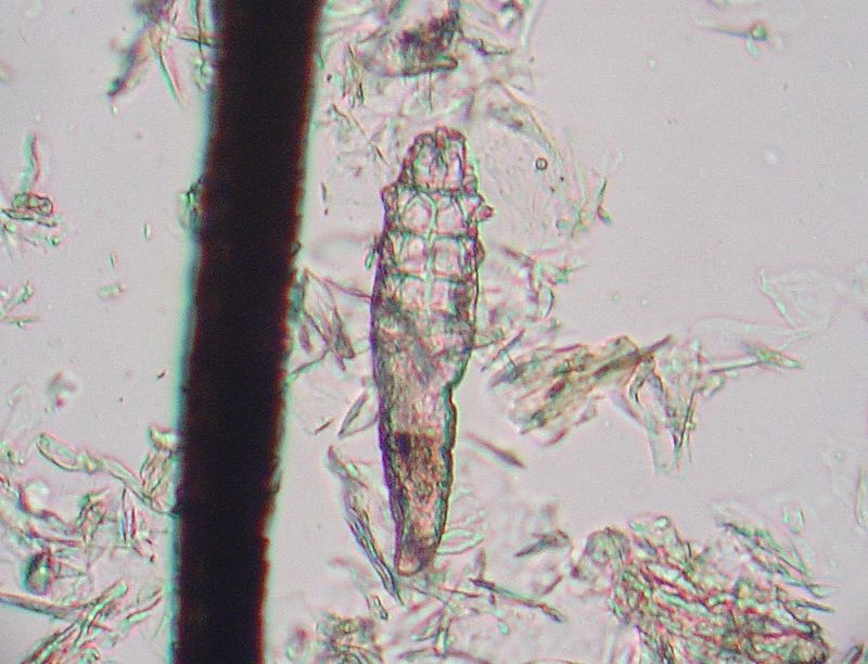 Eyelash Mites: The Creatures that Eat, Mate, and Die on Your