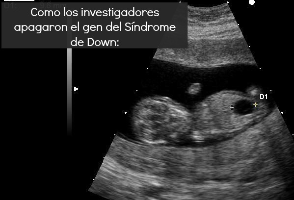 Ultrasound of fetus with Down syndrome and megacystis via X.Compagnion