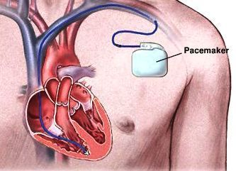 An artificial pacemaker placed under the skin, with an electrical wire fed into the heart. (Credit: greenscienceking.wikispaces.com)