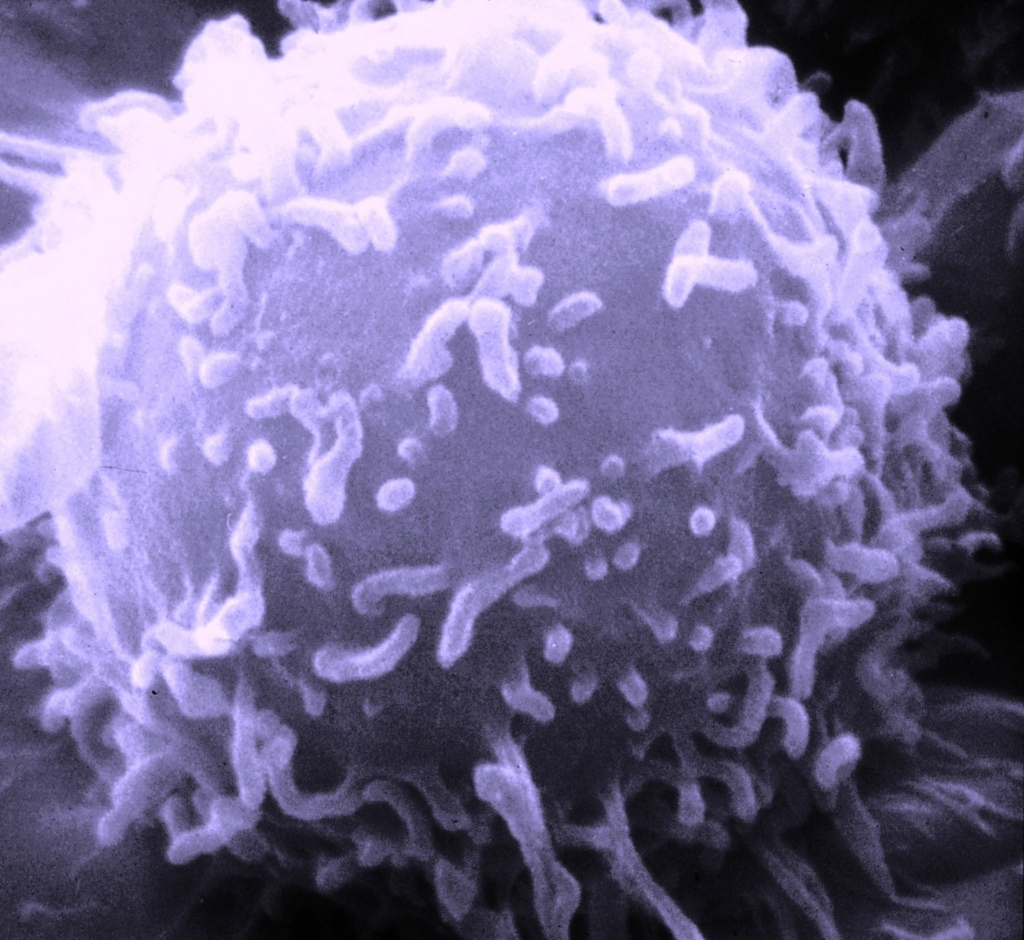 Microscope view of a lymphocyte. Image Credit:  Dr. Triche/National Cancer Institute