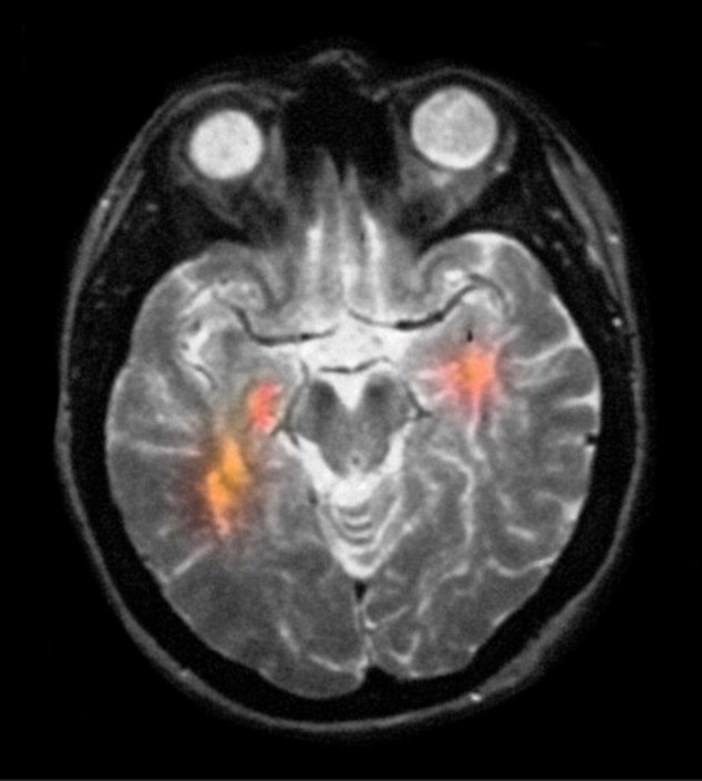 A brain scan of a patient with MS. Via WikiMedia
