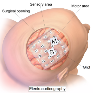 Intracranial_electrode_grid_for_electrocorticography