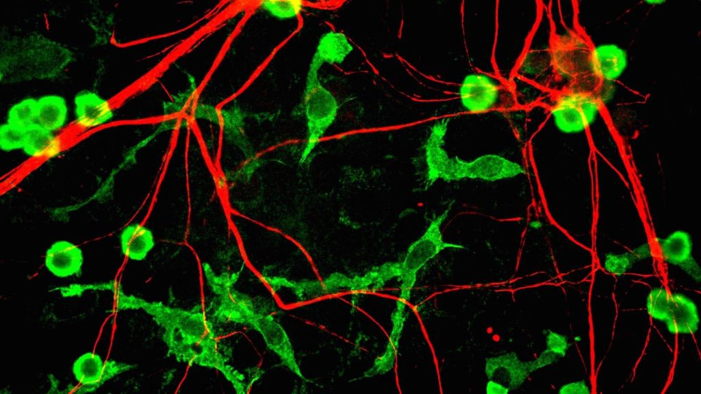 Microglia (green) among neurons (red)