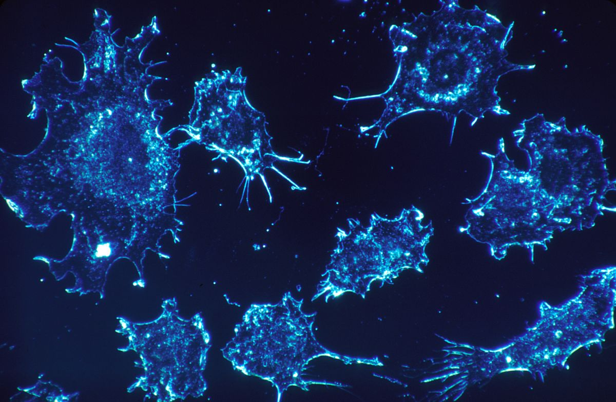 Cancer_cells_(1)
