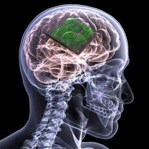 http://www.futuretimeline.net/21stcentury/images/memory-chip-brain-implant.jpg
