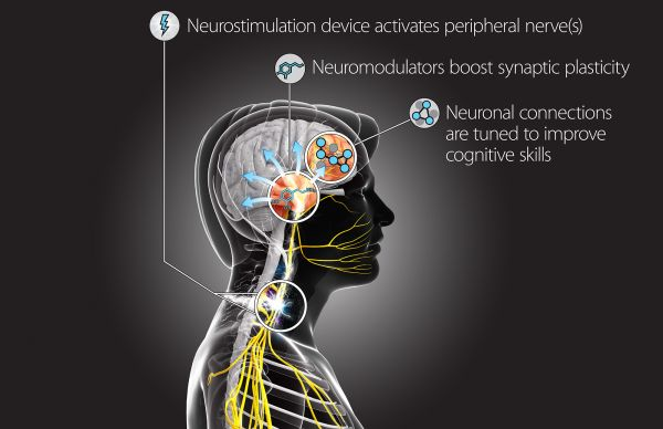 "The Targeted Neuroplasticity Training (TNT) program will use a suite of techniques to stimulate the peripheral nervous system and ""reprogram"" the brain to learn new skills. Credit: Defense Advanced Research Projects Agency"
