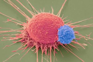 T- Cell(Blue) and Cancer Cell (Red) Credit:STEVE GSCHMEISSNER/SPL