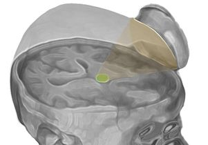 The researchers targeted the thalamus with low-intensity focused ultrasound pulsation. - UCLA Newsroom