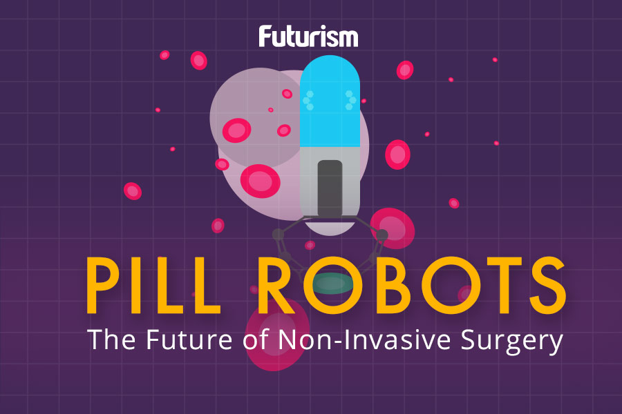 Pill Robots: The Future of Non-Invasive Surgery [INFOGRAPHIC]
