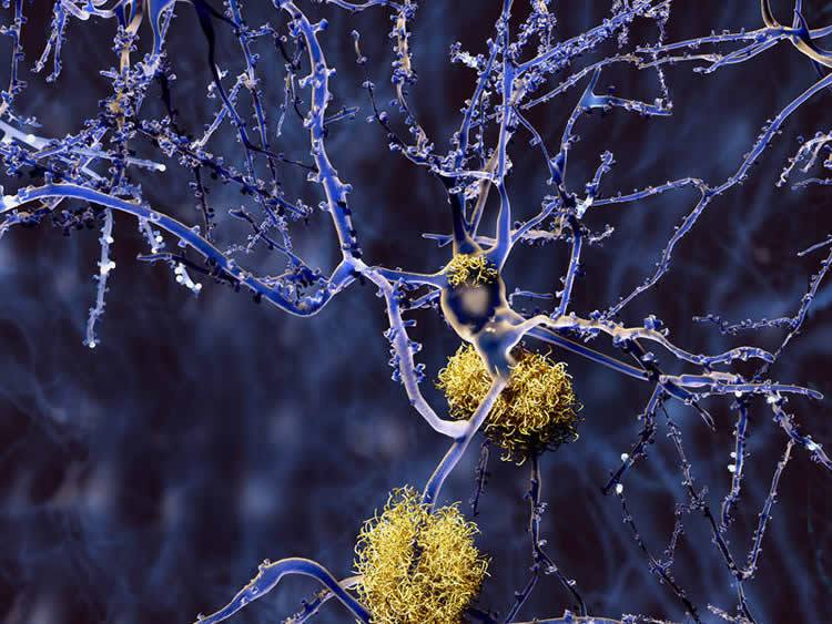 Amyloid plaques on a neuron. Credit: TUM/Juan Gärtner