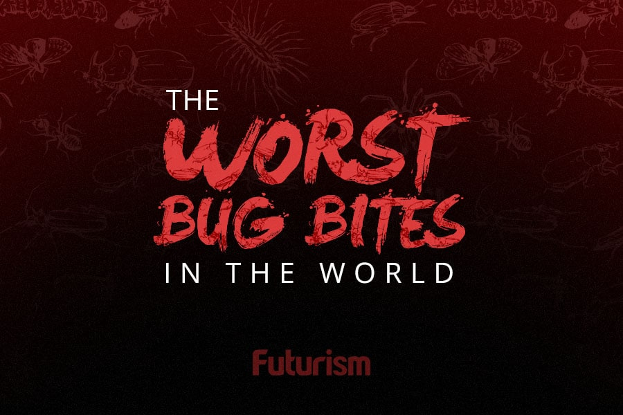 The Worst Bug Bites in the World [INFOGRAPHIC]