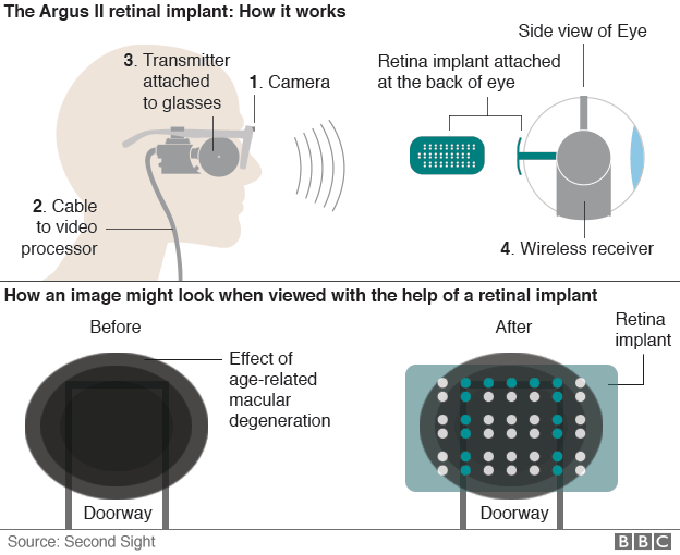 How the Argus II retinal implant operates. Credit: BBC