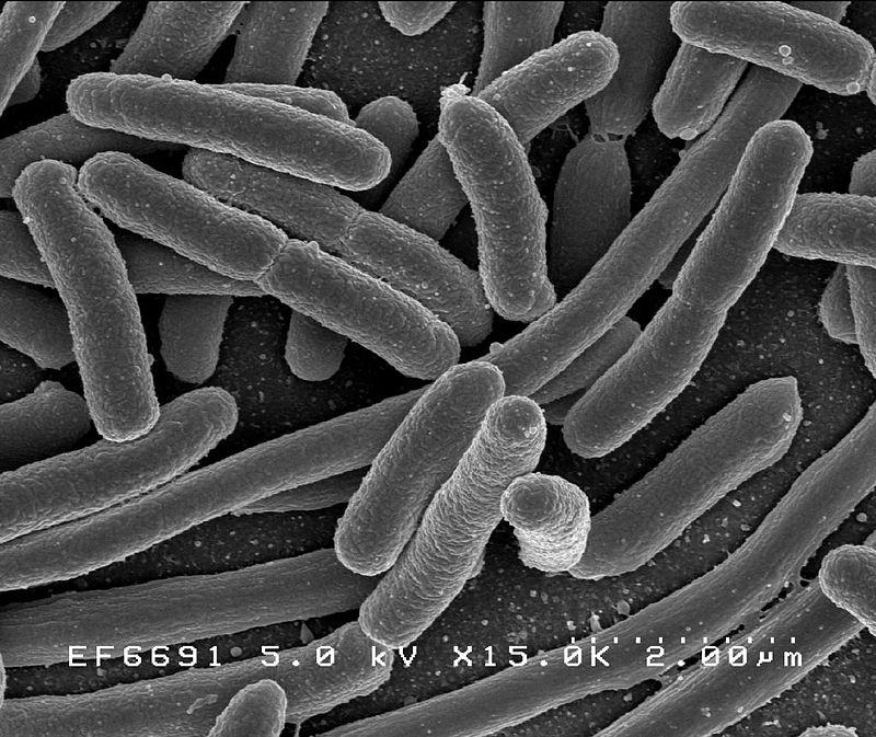 parkinson's disease microbial disease digestive problems neurodegenerative diseases