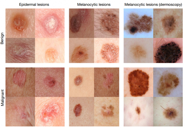 Ai Can Identify Skin Cancer As Well As Doctors