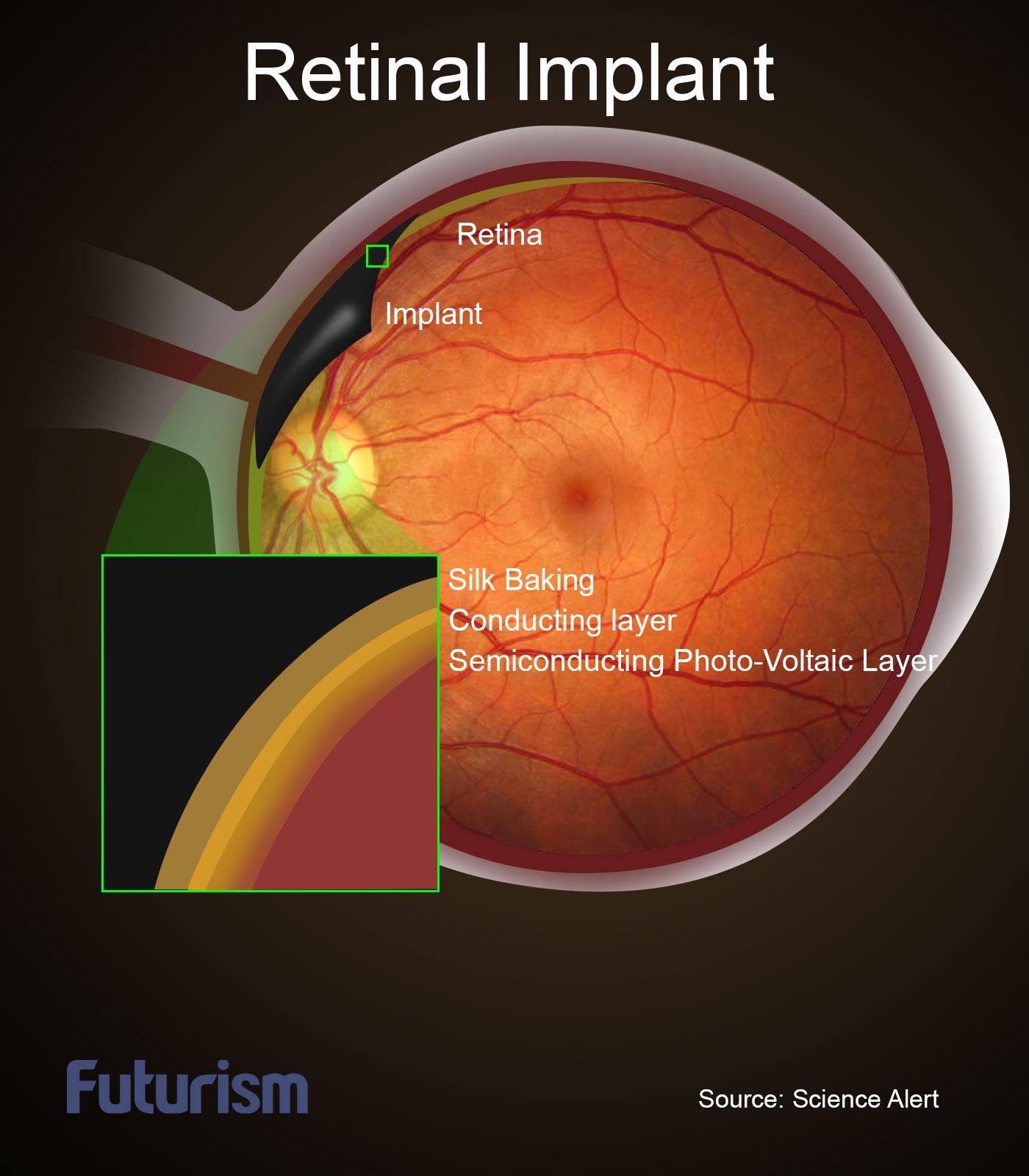 retinal-implant-futurism