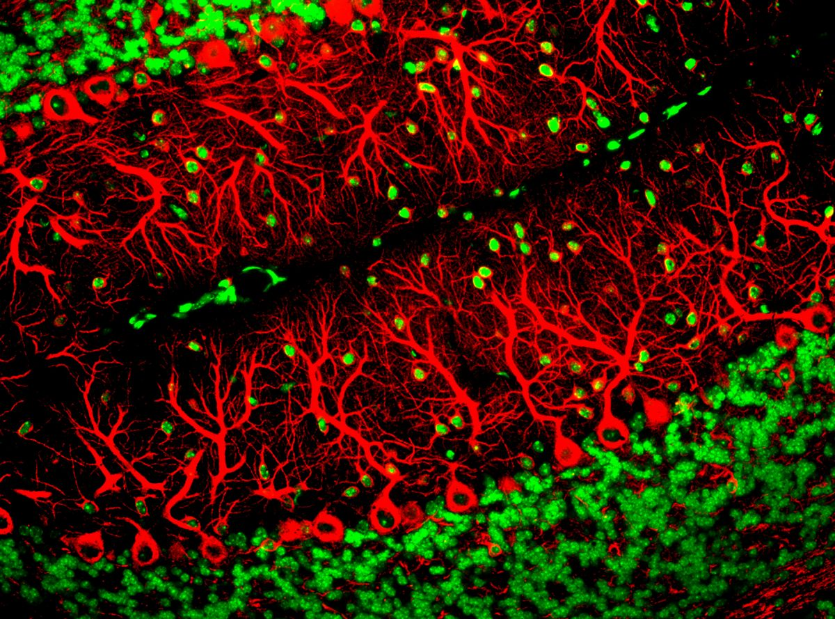Purkinje Cells (In Red). Image Credit: ZEISS Microscopy, Flickr