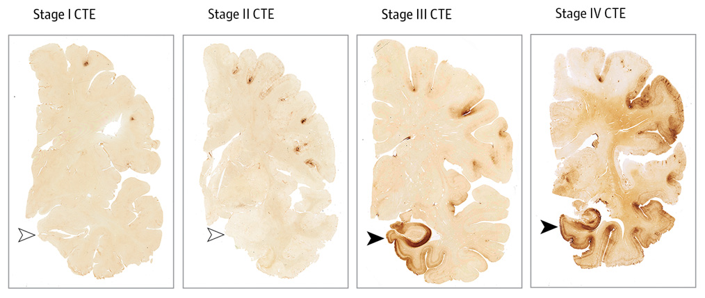 *4* Study Reveals Connection Between American Football and Chronic Traumatic Encephalopathy