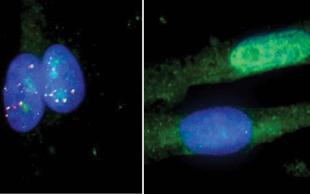 crispr-cas9 rcas9 als gene editing