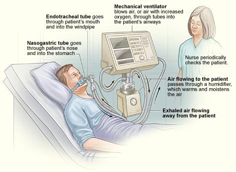 ventilator-breathing-paralysis-breakthrough