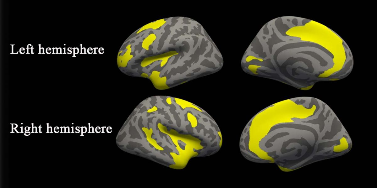 Differing cortical thickness. Image Credit: Radiological Society of North America