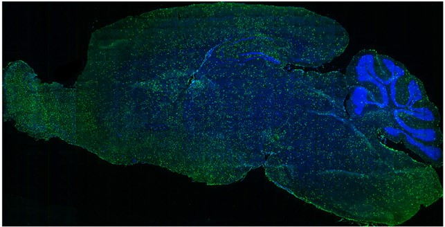 Brain of a mouse injected with the genetically engineered immune cells, which have distributed widely. This treatment has the potential to repair and regenerate brain tissue.