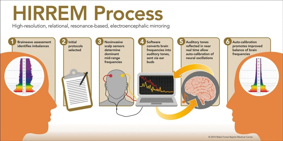 The HIRREM Process. Image Credit: Wake Forest Baptist Medical Center