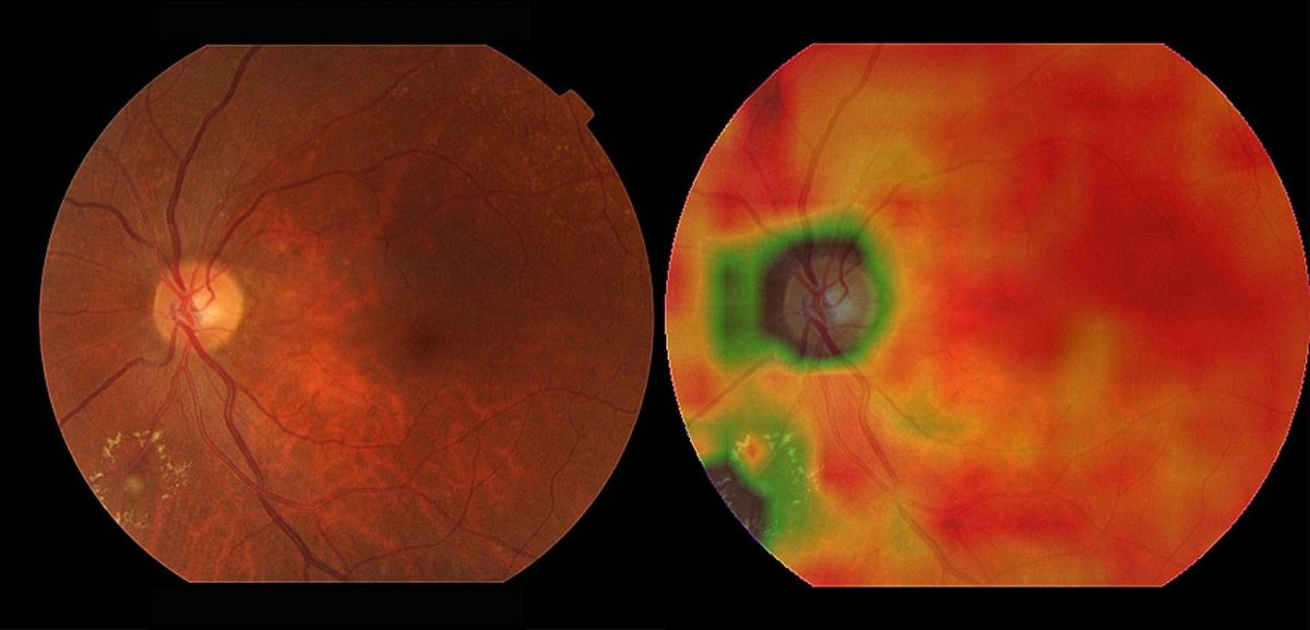 Two eye images showing damage in patches of green and brown. A medical AI program has been trained to rapidly recognize disease on images like this one.