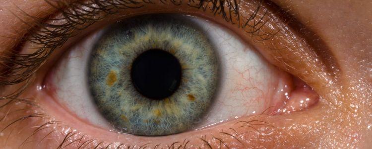 eyedrops corneas nearsighted farsighted