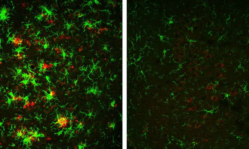 A mouse with Alzheimer's disease (left) shows red amyloid plaques and green activated microglial cells. On the right is the brain of a mouse that has gradually lost BACE1. Image Credit: Hu et al., 2018