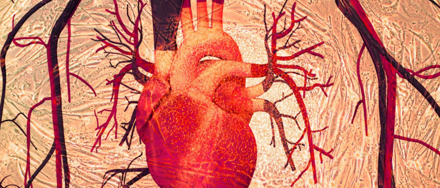 A stem cell patch could heal hearts damaged by cardiac arrest