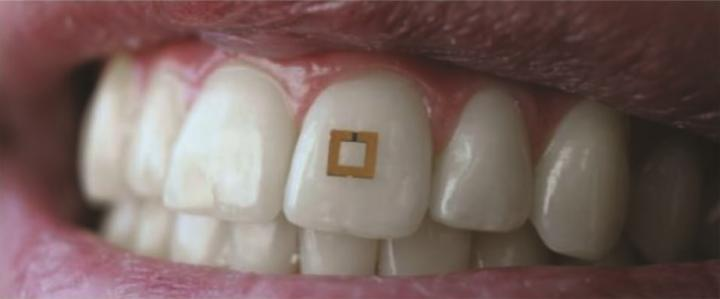 The tooth-mounted sensor, a tiny gold square mounted on a person's front tooth.