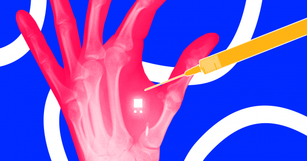 The Danger of Sweden's Microchip Implant Trend | Futurism