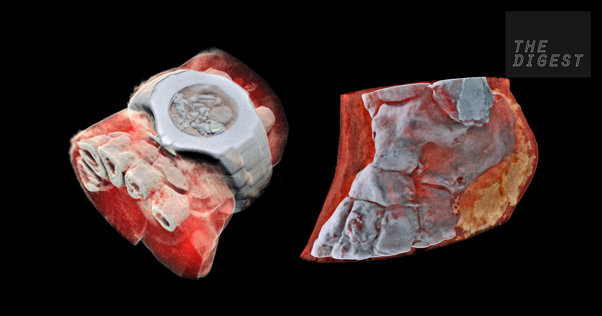 These mind-blowing images of the human body were made by a new kind of scanner