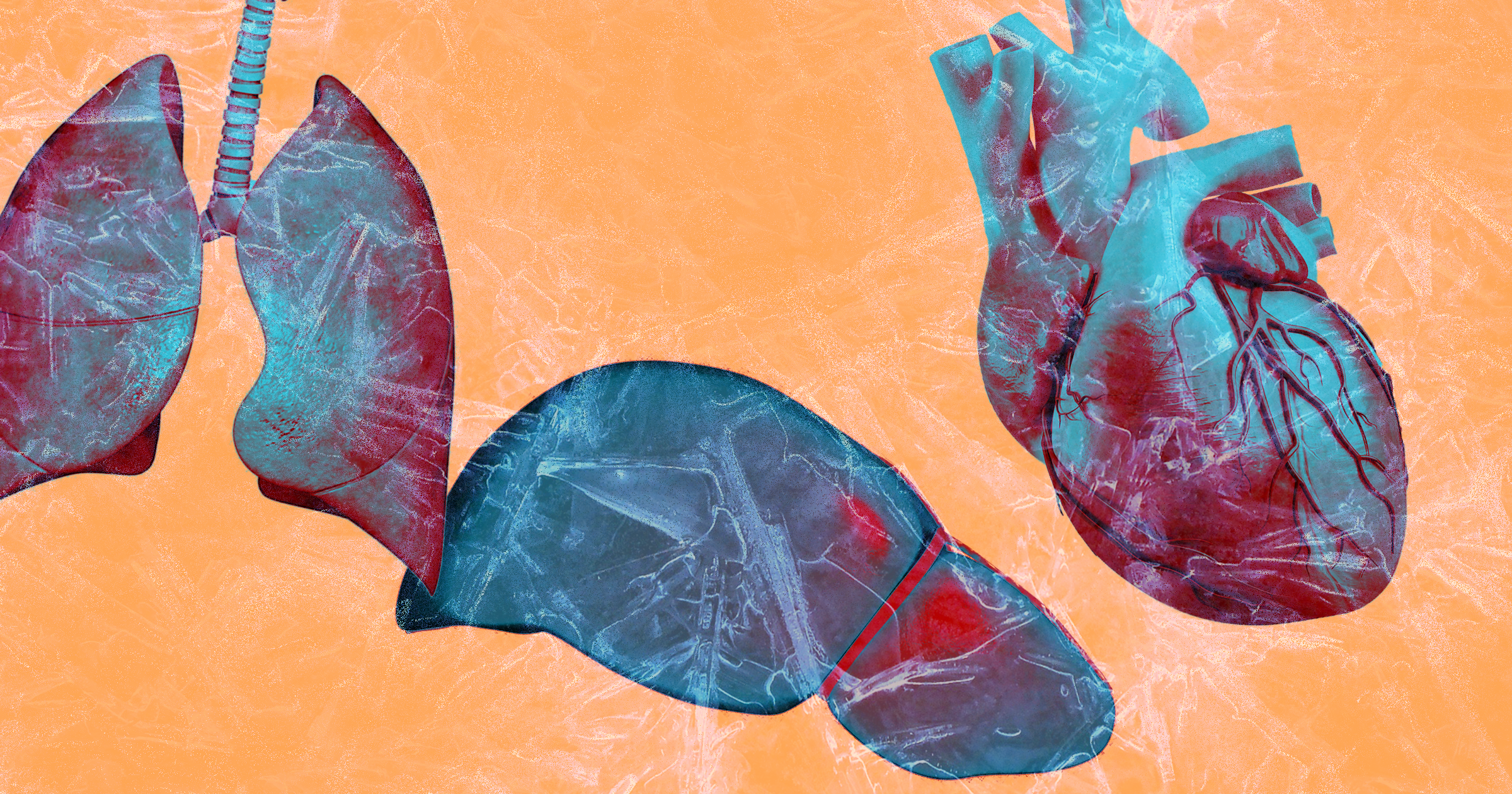 Freezing And Storing Donated Organs Could Eliminate Some Transplant