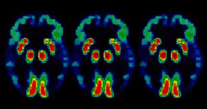 A new clinical trial is recruiting patients to see if a drug that stops ALS-related neuron death can also help people with Alzheimer's Disease.