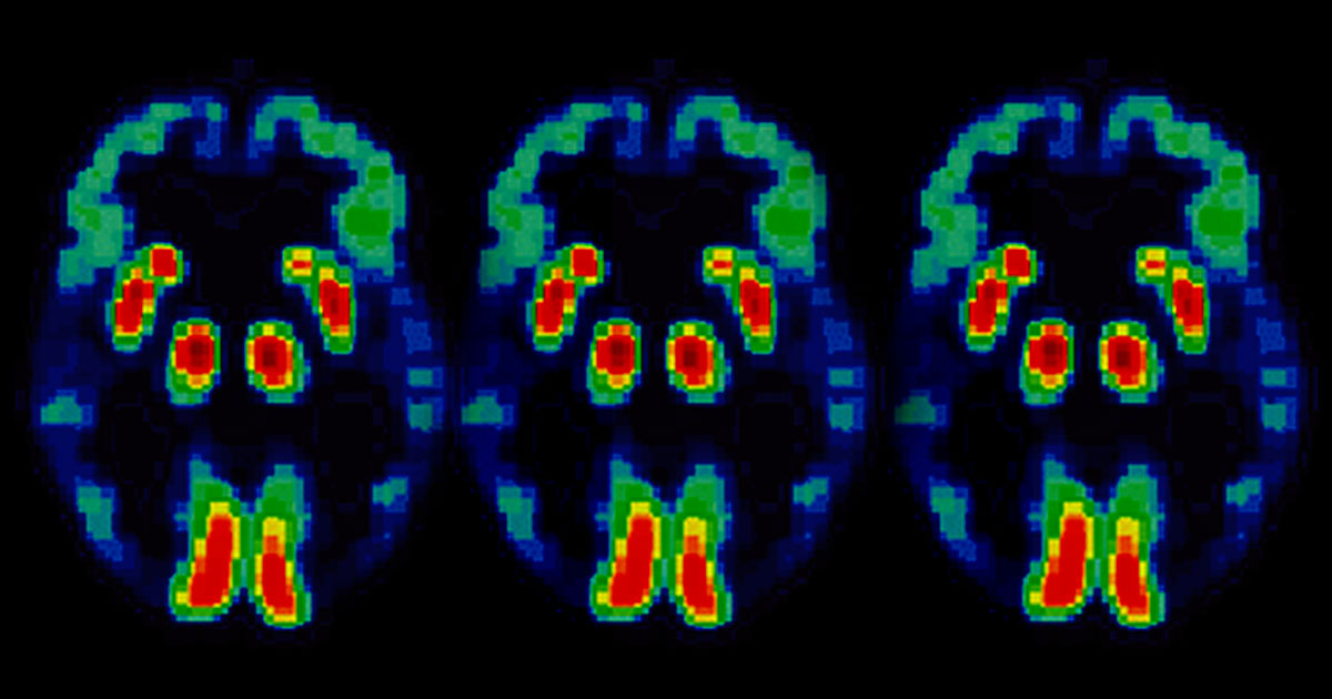 New Drug Trial Could Halt Alzheimer's Memory Loss