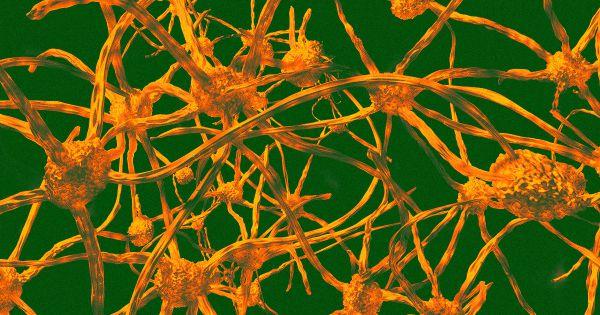 New data: bone marrow transplants prevent aging