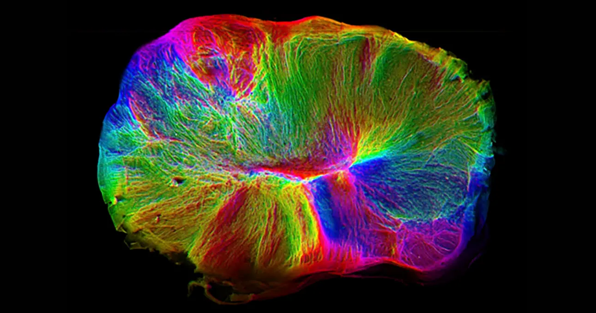 """Lab-Grown Brain Uses """"Tendrils"""" to Grab, Control Spinal Cords"""