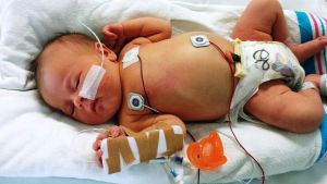 Newborn baby in a hospital bed, machine-learning models can help detect sepsis in babies.