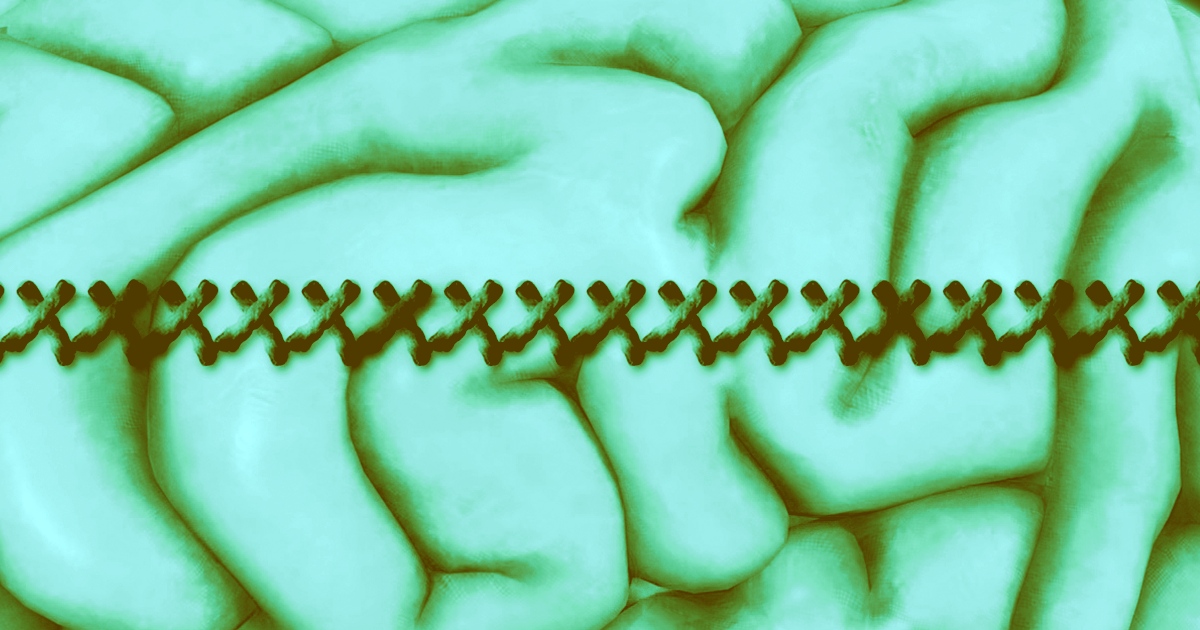 """Scientists Invent """"Sewing Machine"""" to Implant Brain Electrodes"""