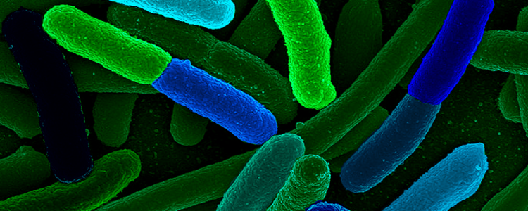 Scientists Created an Organism With an Entirely Synthetic Genome