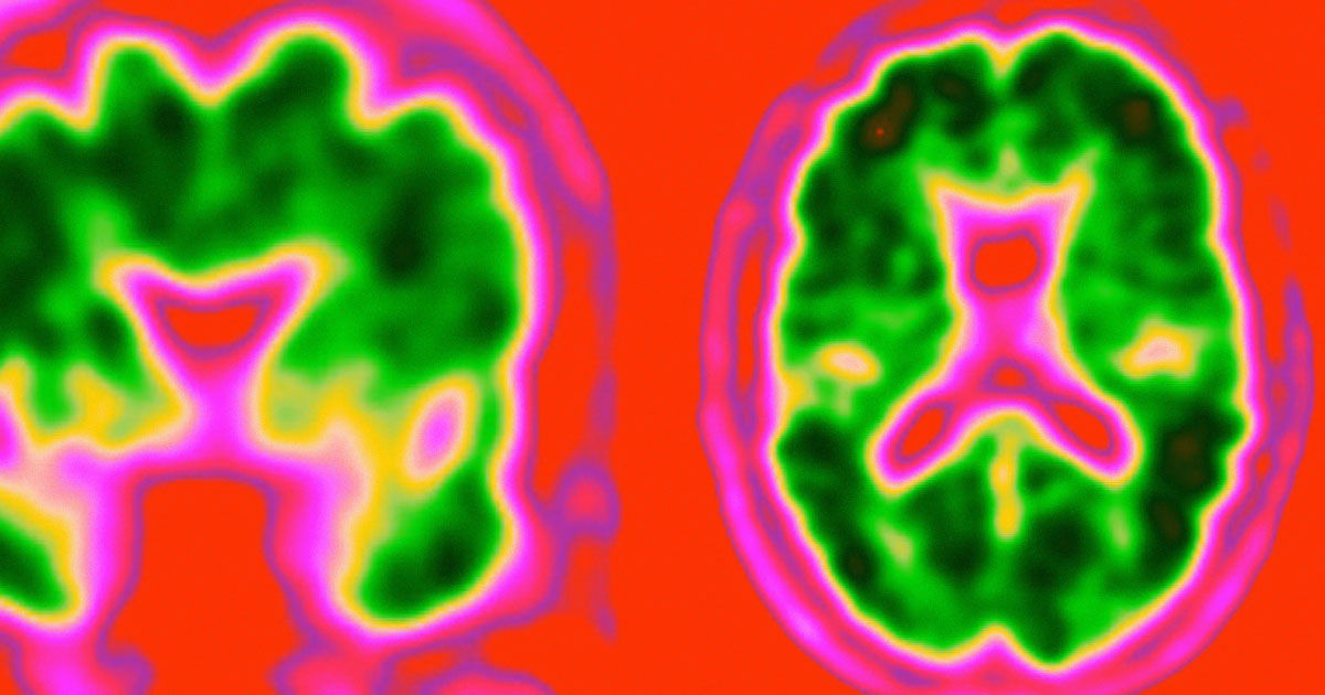 New Blood Test Could Detect Alzheimer's 20 Years Before Symptoms