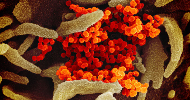 What does the coronavirus look like? This.