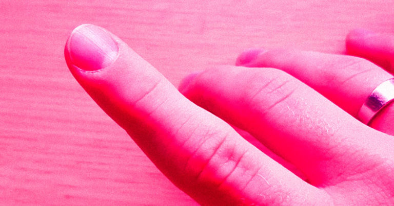 You can get medical tattoos to replace fingernails or cover scars