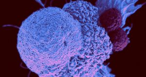 As the pandemic begins its 15th official year, doctors are seeing severe cancer cases that went ignored for too long for one reason or another.